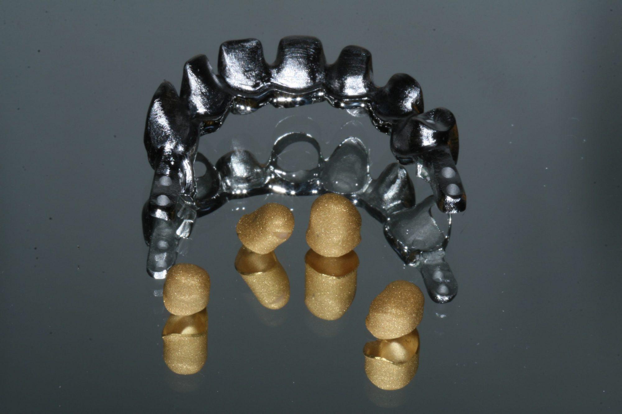 Galvanotechnik u dental labor wentzsche