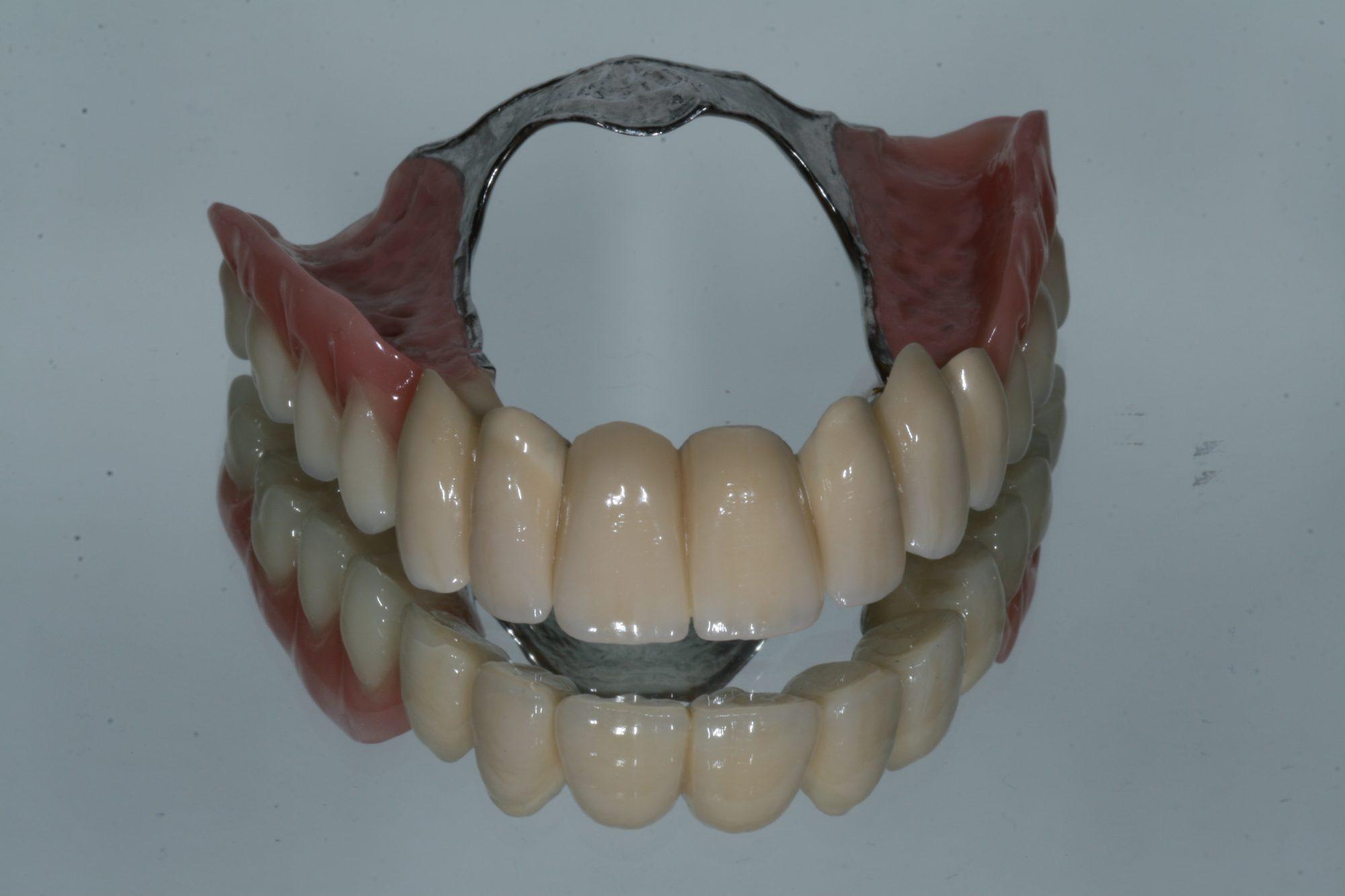 Galvanotechnik u2013 dental labor wentzsche